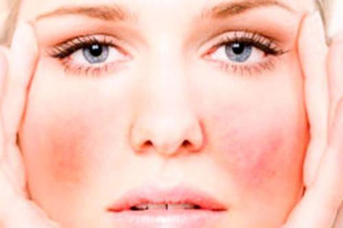 allergija-na-mjatu-simptomy_1_1
